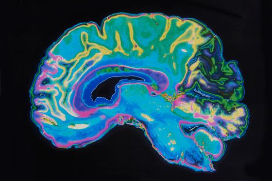 Brain-Scan-MRI-560